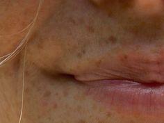 freckles / sproetjes