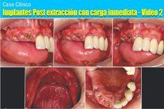 Caso Clínico: Implantes Post extracción con carga inmediata - Video 2 | Odonto-TV