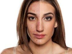 La recette du masque anti cerne pour ne plus avoir l'air fatigué(e) noté 3.32 - 28 votes Les cernes sont un endroit stratégique de votre visage. La peau y est très fine et à la moindre faillite dans votre ligne de conduite, qu'il s'agisse de fatigue répétée ou de mauvaise alimentation, votre visage vous trahit....