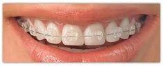 Dentist: Factors affecting the dental response to orthodontics Teeth Braces Cost, Dental Braces, Kitchen Aid Appliances, Slate Appliances, Wolf Appliances, Retro Appliances, Electrical Appliances, Types Of Braces, Misaligned Teeth