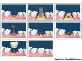 Dental implants can be compared to screws that are implanted in the jawbone to permanently secure crowns or lock-in loose dentures. Dental implant treatment is a relatively simple procedure which is generally done under best dentist in Ahmedabad. For more information please visit this url - http://www.ahmedabadorthodental.com/implants.html and contact us @ 07940057100