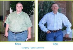 Before and After Lap Band Surgery with My Bariatric Solutions!