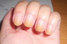 Home Remedies to Clear Yellow Nails Toenail Fungus Treatment, Nail Treatment, Us Nails, Hair And Nails, Ring Worm Treatment, Nail Whitening, Baking Soda And Lemon, Nails Only, Shiny Nails