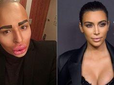 Armario de Noticias: Hombre se somete a cirugías para parecerse a Kim K...