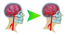 Poznejte, jak mozek tvoří nové neurony. Těchto 5 věcí zvyšuje inteligenci!