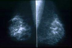 breast cancer mammogram breast cancer mammogram