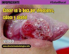 cáncer-tabaco-alcohol