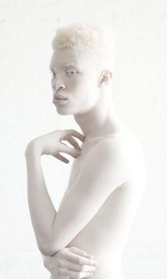 Levert een prachtige foto op, een Albino model tegen een witte achtergrond Shaun Ross Albino Model