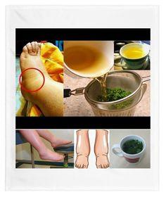 Remedios caseros para la hinchazón de pies (Retencion de liquidos)