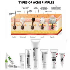 The unique combination of actives in the pHformula acne skin resurfacing solutions were specifically formulated to correct main acne manifestations such as comedones, papules and pustules. Through regular skin resurfacing treatments,  inflammatory & non-inflammatory acne can be treated. Contact your pHformula skin specialist for a skin consultation today. #pHformula #skinresurfacing #artofskinresurfacing #acne #skinresurfacingtreatments #results Acne And Pimples, Acne Skin, Skin Resurfacing, Types Of Acne, Skin Specialist, White Blood Cells, Healthy Skin, Improve Yourself