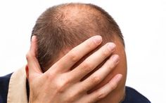 Scientists believe they may have hit upon a cure for baldness — but it is not for the faint-hearted.