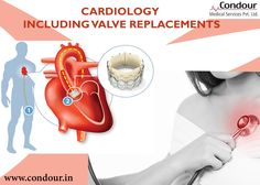 The #Patient Guide to #heart valve #surgery www.condour.in