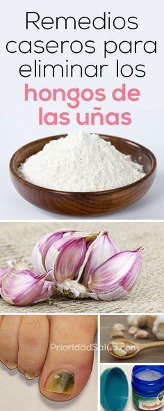Elimina los hongos de las uñas de los pies con este remedio casero. #uñas