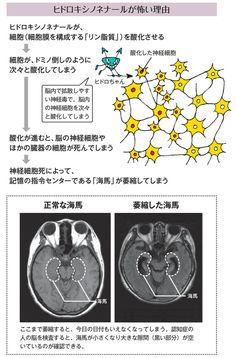 毎日の「サラダ油」が認知症を進行させる!ヒドロちゃんは端的にいえば「毒」です。サラダ油の主成分であるリノール酸がセ氏200度前後に加熱されると、ヒドロちゃんは急激に増えます。  これが体内に入ると、まるでドミノ倒しのように細胞膜のリン脂質を酸化し、ついには、神経細胞だけではなくあらゆる臓器の細胞を死に追いやります。  そうなると、脳の神経細胞は死んでしまい、最終的には「海馬」という「記憶の指令センター」が萎縮してしまいます。