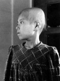 "The A-bomb Photographs of Shunkichi Kikuchi: Aiko Ikemoto (October 6, 1945)  In Mr. Kikuchi's note, Aiko was identified as an outpatient at Hiroshima Red Cross Hospital. A doctor first saw her on September 24. Her symptoms included ""hair loss, lack of appetite, bleeding from the eyes and gums, and fever."" The siblings were photographed, alone and together, in seven photos."