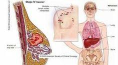 Berikut ini adalah informasi mengenai Obat Herbal Penyakit Kanker Payudara dengan menggunakan salah satu produk herbal Ace Maxs yang teruji aman dan ampuh atasi penyakit tanpa efek samping negatif terhadap tubuh