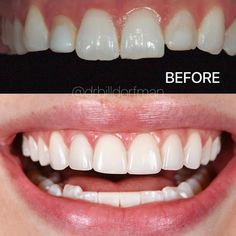 "Dr. Bill Cosmetic Dentist on Instagram: ""TREATMENT: 6 Upper Porcelain Veneers to replace old bonding 🎯 Purpose: Improves function and aesthetics 🎉 Results: Immediate ✏ Note:…"" Veneers Teeth, Porcelain Veneers, Perfect Smile, Dental Care, Bond, Purpose, Aesthetics, Cosmetics, Instagram"
