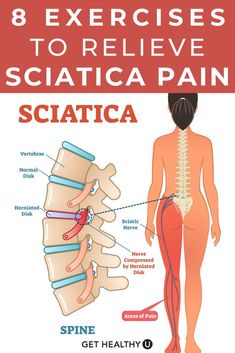 Yoga For Sciatica, Sciatica Stretches, Sciatica Pain Relief, Sciatic Pain, Best Stretches, Sciatic Nerve Exercises, Lower Back Pain Exercises, Yoga For Back Pain, Leg Pain