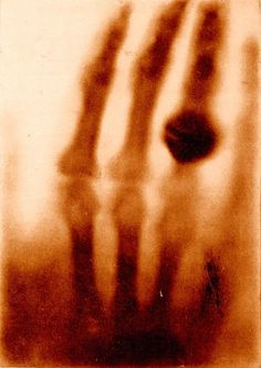 """""""The hand of Mrs. Wilhelm Roentgen: the first X-ray image, 1895    In Otto Glasser, Wilhelm Conrad Röntgen and the early history of the Roentgen rays. London, 1933. National Library of Medicine.    The announcement of Roentgen's discovery, illustrated with an X-ray photograph of his wife's hand, was hailed as one of mankind's greatest technological accomplishments, an invention that would revolutionize every aspect of human existence."""""""