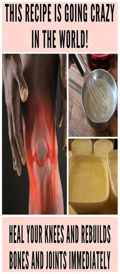 This Recipe is going Crazy in the World! Heal your Knees and Rebuilds Bones and Joints Immediately - WOMEN'S FIT HEALTHY