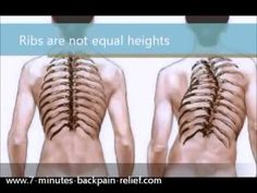 This 20 minute Gentle Yoga for Scoliosis is a relaxing gentle stretching practice to be used whenever you're feeling stiff and tense. Yoga For Scoliosis, Scoliosis Exercises, Scoliosis Surgery, Human Spine, Human Body, Pilates, Lower Back Exercises, Gentle Yoga, Arthritis