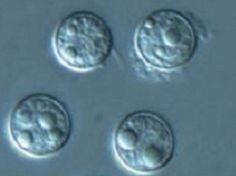 Cyclospora is a tough parasite that can survive for weeks outside the human body.