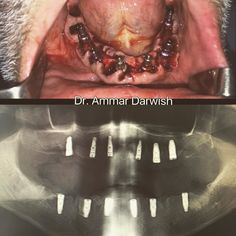 #surgery#oralsurgery#dentalimplant#çenecerrahi#oralmaxillofacialsurgery#çenecerrahisi#fullmouthextraction#fullmouthrehab by dr.ammardarwish Our Oral Surgery Page: http://www.myimagedental.com/services/oral-surgery/ Google My Business: https://plus.google.com/ImageDentalStockton/about Our Yelp Page: http://www.yelp.com/biz/image-dental-stockton-3 Our Facebook Page: https://www.facebook.com/MyImageDental Image Dental 3453 Brookside Road Suite A Stockton CA 95219 (209) 955-1500 Mon - Fri: 8am…