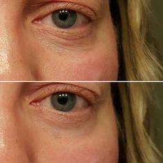 Nerium Eye Serum one minute results! jbinstock.nerium.com