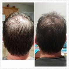 This is a picture is 3 weeks apart. He used The Monat 2 in 1 shampoo/conditioner and the IRT spray everyday! Once a week he put the Rejuveniqe oil on at bedtime! Look at that hair growth!! #hairgrowth #menshair ##monat