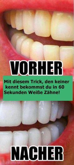 Mit diesem Trick, den keiner kennt bekommst du in 60 Sekunden Weiße Zähne! | njuskam!