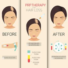 Restore hair with power of your blood   PRP hair restoration at #revitta   212.535.1201   #beauty #beautiful #haircare #alopecia #hairlosssolution #hairlosshelp #hairrestoration #thinninghair #hairgrowth #hairlosstreatment #hairlossspecialist #hairtreatment #thinhair #hairlossprevention #hairreplacement #hairlossolutions #hairlosssolutions #prp #hairrestoration #hairloss #prphairrestoration #prpinjection #fullerhair #hairtransplant Hair Loss Causes, Prevent Hair Loss, Prp Hair, Male Pattern Baldness, Stop Hair Loss, Prp For Hair Loss, Hair Loss Women, Make Up, El Paso