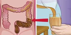 Watch This Video Daunting Home Remedies for Natural Colon Cleansing Ideas. Inconceivable Home Remedies for Natural Colon Cleansing Ideas. Fitness Workouts, Home Remedies, Natural Remedies, Combattre Le Stress, Bowel Cleanse, Health Cleanse, Cleanse Detox, Bebidas Detox, Colon Cleansers