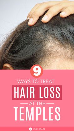 8 Simple Ways To Treat Hair Loss At The Temples: emple hair loss in females is common and dealing with it can be quite hard, but understanding hair loss and its causes can tremendously help find a solution. Keep reading to find out what causes hair loss at the temples and how you can regrow temple hair naturally. #Remedies #Beauty #Haircare #Hairloss #HomeRemedies #BeautyTips