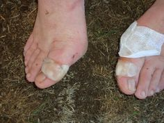 #greatwalker I did the Oxfam 100km Trailwalker in 2010 and raised $13,000 for the charity. This is what my feet looked like afterwards. The sense of achievement and people we may have helped made it worth the pain!
