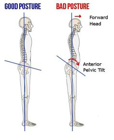 4 Great Exercises for Correcting Anterior Pelvic Tilt -- I definitely have this issue from sitting so much on my job and at my computer at home.