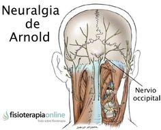Névralgie d'Arnold : Symptômes, causes, diagnostic et