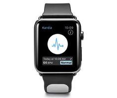 Kardia Band il cinturino con elettrocardiografo per Apple Watch