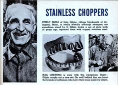 STAINLESS CHOPPERS  STEELY SMILE of John Gilpin, village blacksmith of Livingston, Mont., is really friendly although strangers are sometimes awed by it. Gilpin broke a set of store teeth 16 years ago, replaced them with rugged stainless steel.