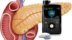 Páncreas artificial para la diabetes tipo 1