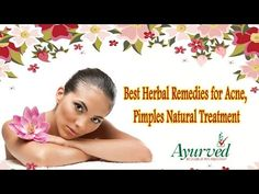 Best Herbal Remedies for Acne, Pimples Natural Treatment