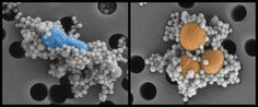 Artificial spleen cleans up blood : Nature - (14th September 2014)