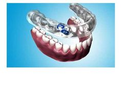 Brodhagen Dental Care's team of dental professionals offer a wide range of family and pediatric dental services such as Obstructive Sleep Apnea,Tooth Whitening,Dental Crowns,Cosmetic Dentistry and many more to our customer at resonable price.visit: http://www.brodhagendentalcare.com/