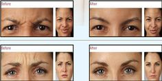 Botox: Available at Reflection Medical Spa http://mrkt.ms/UibI