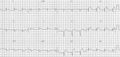 Anteroseptal STEMI (ST-Elevation Myocardial Infarction