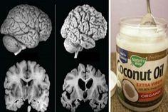 kokosovo-ulje Osim za liječenje Alzheimerove bolesti, kokosovo ulje je odlično i u liječenju epilepsije, Parkinsonove bolesti, multiple skleroze, pa i dijabetesa. Idealno je i za prženje jer nije kalorično.