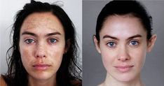 Before and After's of Carbon Skincare's Chemical Face Peel Results for Hyperpigmenation