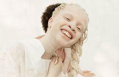 Leur beauté délicate et rare est en train de créer un véritable raz-de-marée : atteintes d'albinisme, ces jumelles Brésiliennes sont promises à un avenir radieux !