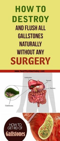 HOW TO DESTROY AND FLUSH ALL GALLSTONES NATURALLY WITHOUT ANY SURGERY