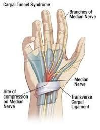 The most common neuropathic pain condition of the hand is called Carpal Tunnel Syndrome (CTS). The options for Carpal Tunnel Syndrome are numerous and range from the non-invasive (non-surgical) to the invasive (surgical). Chronic Pain, Fibromyalgia, Dupuytren's Contracture, Median Nerve, Rheumatic Diseases, Spine Health, Neuropathic Pain, Carpal Tunnel Syndrome, Heath And Fitness
