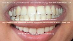 All about laser teeth whitening Teeth Whitening Remedies, Teeth Whitening System, Cosmetic Dentistry Cost, Composite Veneers, Crooked Teeth, Smile Dental, Smile Makeover